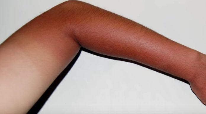 Vídeo explica as causas e consequências das queimaduras de sol