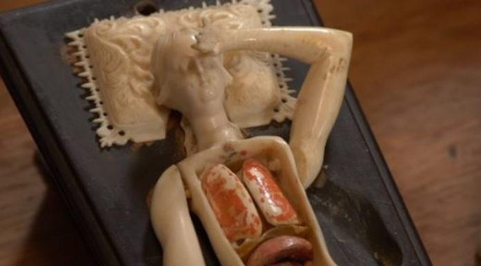 Estranhos bonecos articulados usados por médicos no século 17